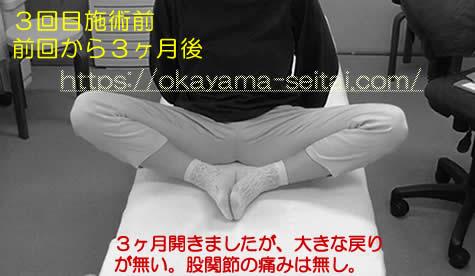 3回目施術前スナップショット(前回から3か月後):右股関節の痛み無し、股関節の可動域は大きな戻り無し
