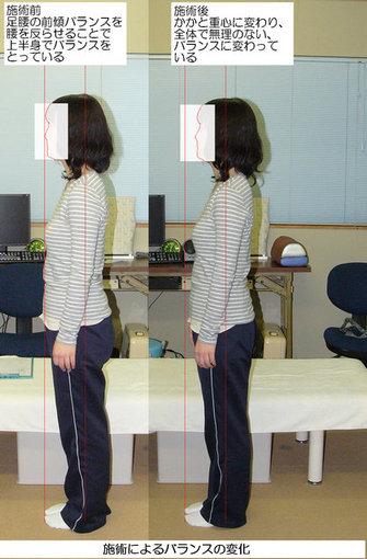 施術で姿勢バランスが改善した図