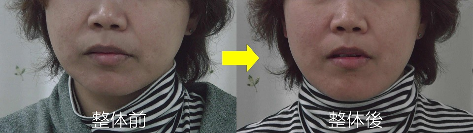 カラダの捻じれによる顔のブレの変化図(初回施術の前後)