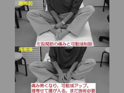 自律神経の乱れが起こす緊張を解放して、その場で、股関節痛と股関節の可動域が変化した事例