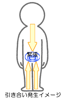 緊張がかかることで筋膜を通じた引き合いが起きたイメージ