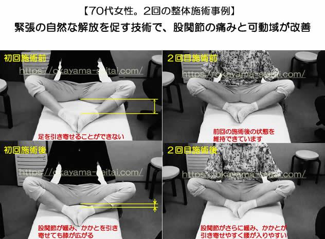 右股関節の痛み・股関節の可動域制限 初回と2回目施術前後の変化の写真
