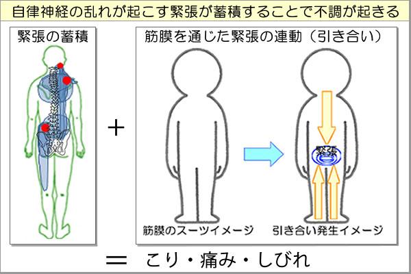 緊張の蓄積と筋膜を通じた連動現象により足底に痛みが出る場合がある