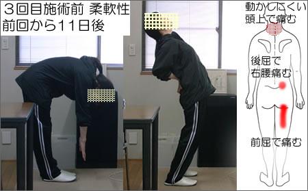 3回目施術前:前屈、後屈の写真。痛みの位置の図