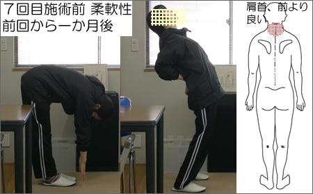7回目施術前:前屈、後屈の写真。痛みの位置の図