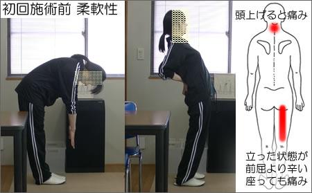 初回施術前:前屈、後屈の写真。痛みの位置の図
