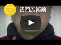 左顎が痛い かみ合わせに違和感 赤磐市 H.Y様【顎関節症・かみ合わせ感の改善動画】