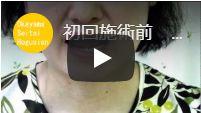 左奥歯が浮いてついていない 岡山県津山市 S.F様【顎関節症・かみ合わせ感の改善動画】