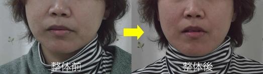 A様:蓄積の左右差で右側に顔がブレている→蓄積が減ると自然と正面に定まる