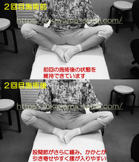 股関節の可動域制限 2回目施術前後の変化の写真